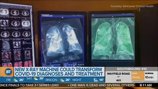 Researchers may develop x-ray machine that may transform how COVID-19 is diagnosed