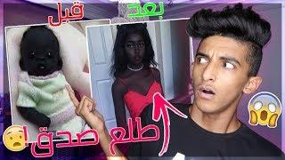 اغرب 5 اطفال في العالم !! ( طفل عيونه سوداء !! ماراح تصدق انهم موجودين !!! )
