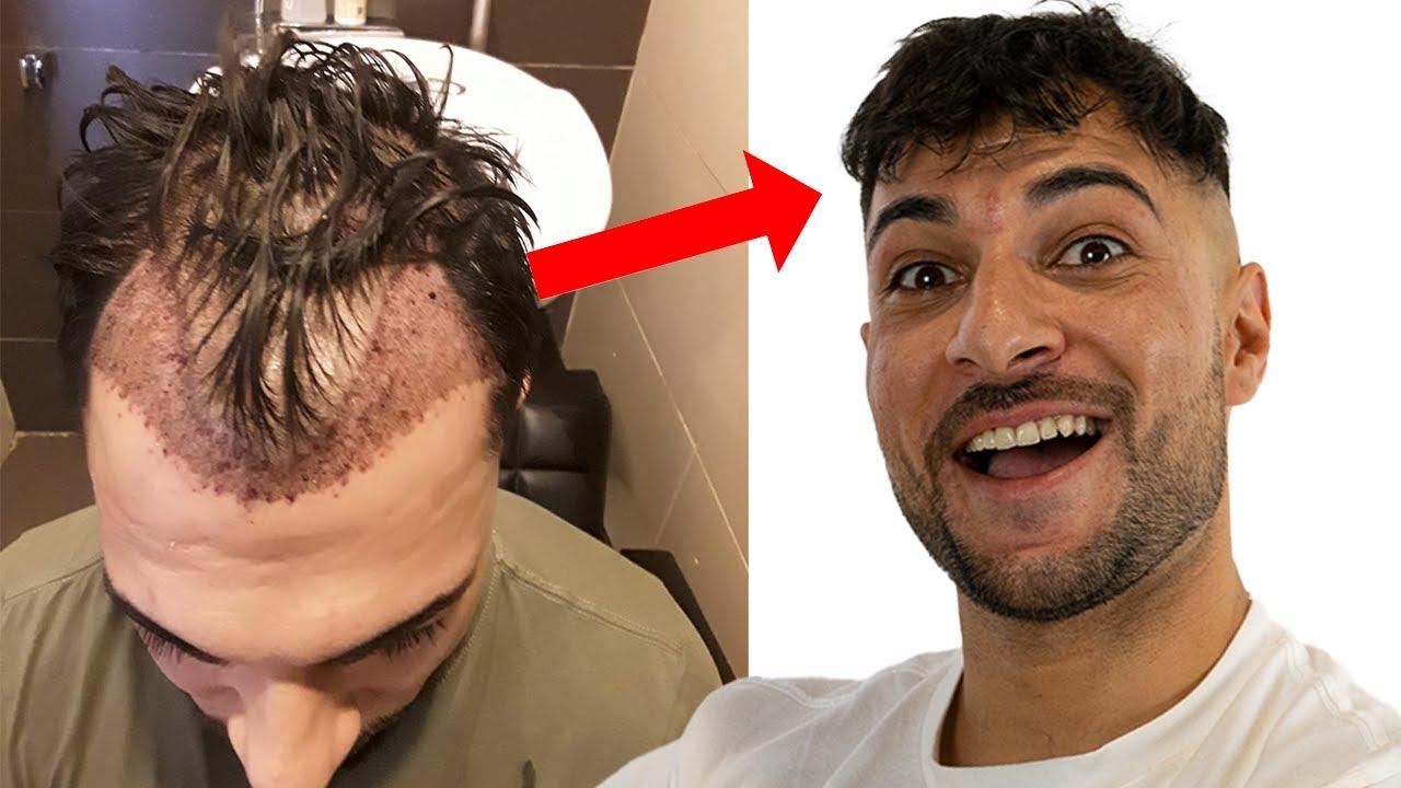 Erfahrungen haartransplantation Meine Haartransplantation