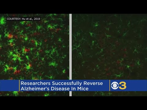 Scientists Say They Have Successfully Reversed Alzheimer's Disease In Mice