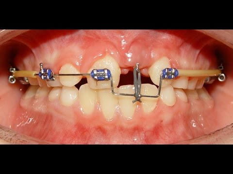 Orthodontic Treatment of an Impacted Dilacerated Upper Central Incisor - Alaa