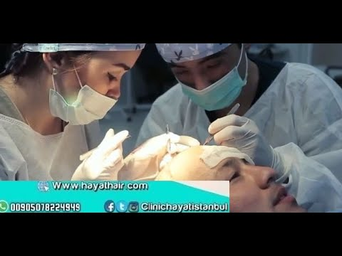 زراعة الشعر في تركيا زراعة الشعر بتقنية الاقتطاف مركز الحياة للتواصل 00905078224949