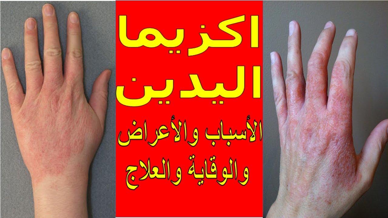 اكزيما اليدين أسبابها أعراضها الوقاية العلاج نصائح ذهبية لمرضى الاكزيما شرح شامل ومبسط Youtube
