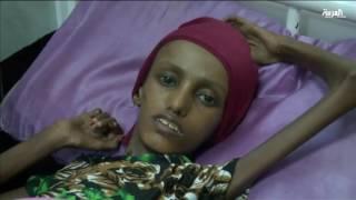 فتاة يمنية تجسد المعاناة الناجمة عن انقلاب الميلشيات