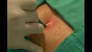 видео Консервативное лечение инфекций мягких тканей. Антибиотики, мази и повязки