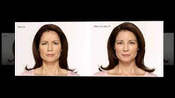 Botox Winter Park FL - Medical Spa Winter Park