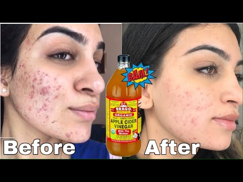 one-month-of-apple-cider-vinegar-on-my-face-to-get-rid-of-acne-*shocking-results*