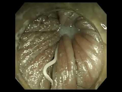 Férgek kerekesférgek pinworms különbség