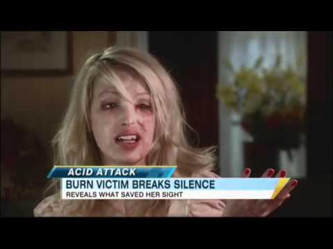 Acid Attack Victim Speaks