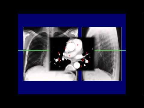 Giải phẫu lồng ngực qua các lát cắt CT