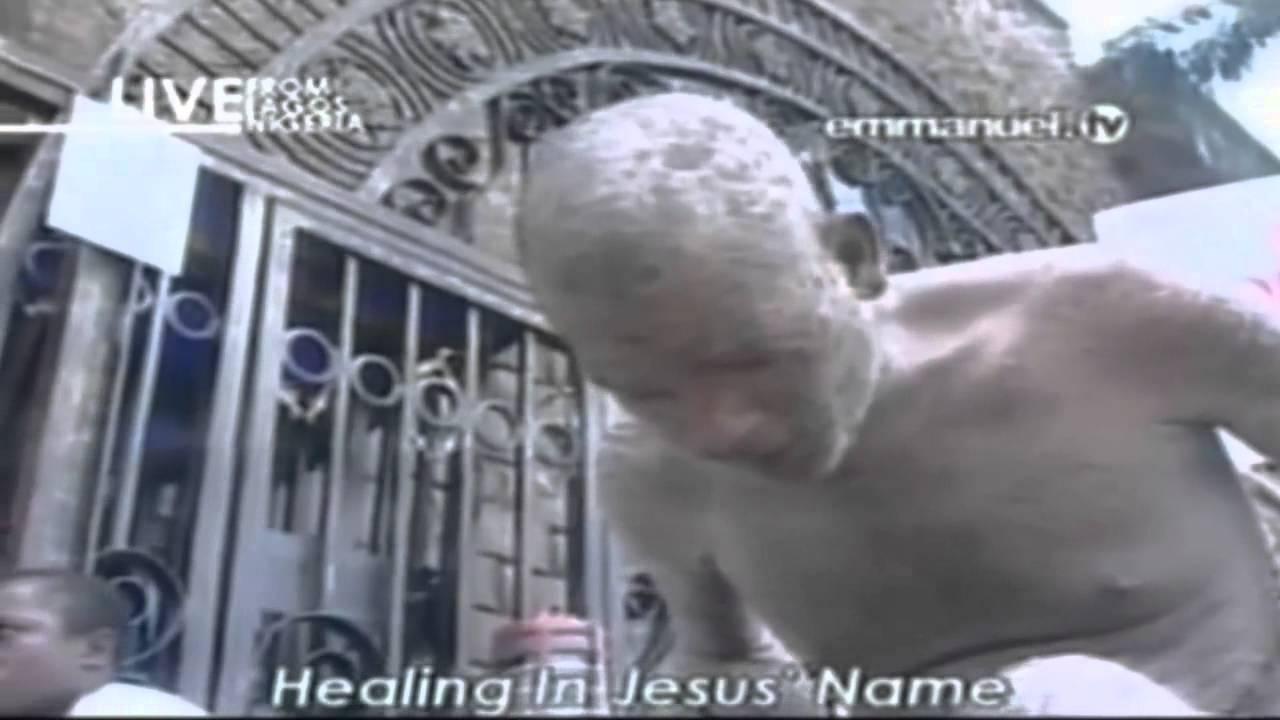 Emmanuel Tv Deliverance – Articleblog info
