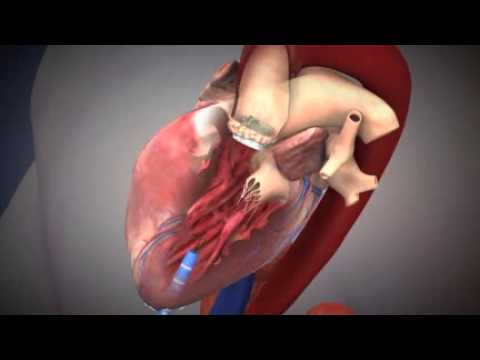 stent operation i hjertet