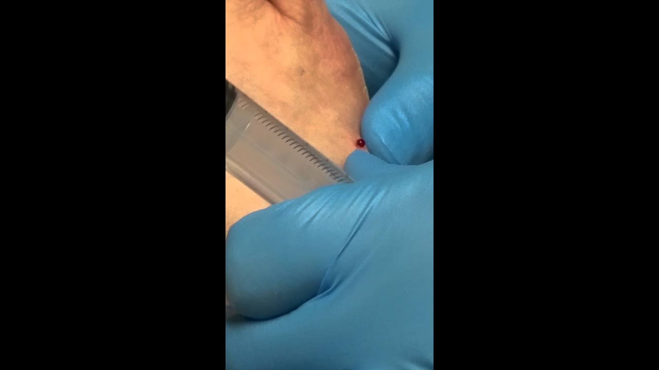 Aspiration of a ganglion cyst. - YouTube