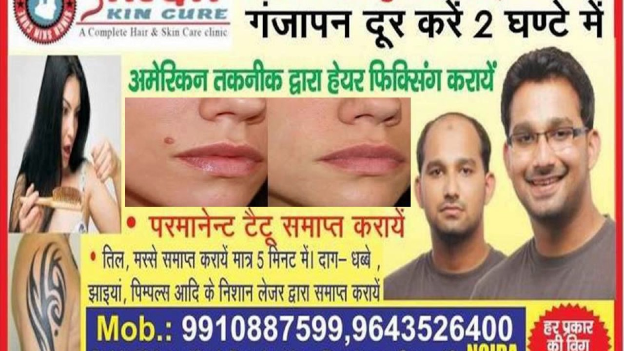 Non surgical hair replacement system hair fixing hair weaving non surgical hair replacement system hair fixing hair weaving hair silicon hair bonding in noida pmusecretfo Choice Image