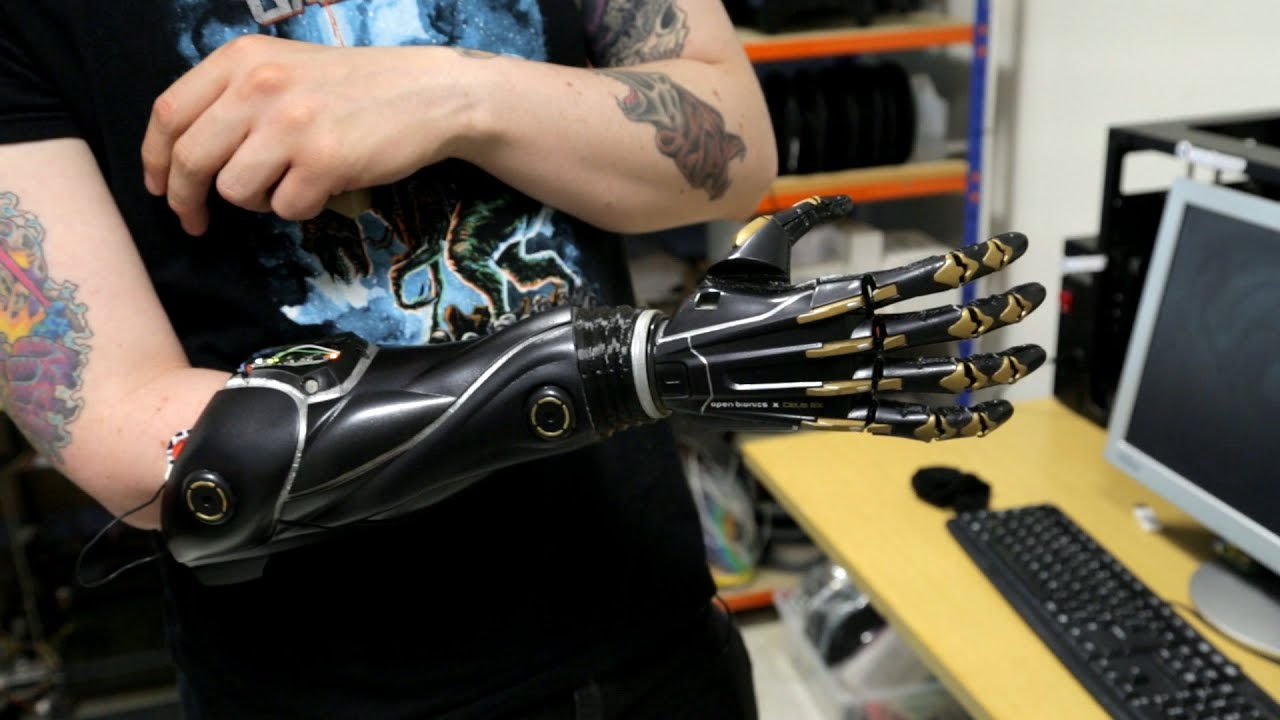 bionic hand 14-year old matthew james was born without a left hand he dreamed of having a sophisticated bionic hand, but his family couldn't afford the £30,000.