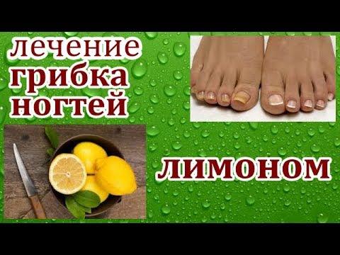 лечение грибка ногтей лимоном.
