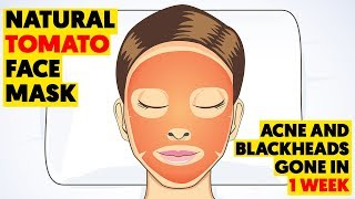 Rub This Tomato Mask on Your Face to Get Rid of Blackheads and Acne