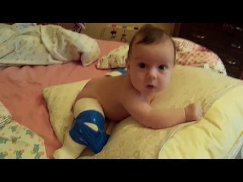 Врожденный вывих бедра - причины, симптомы, диагностика и