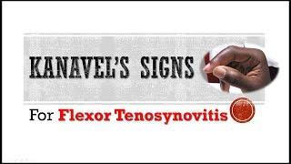 Kanavel's Signs and Flexor Tenosynovitis