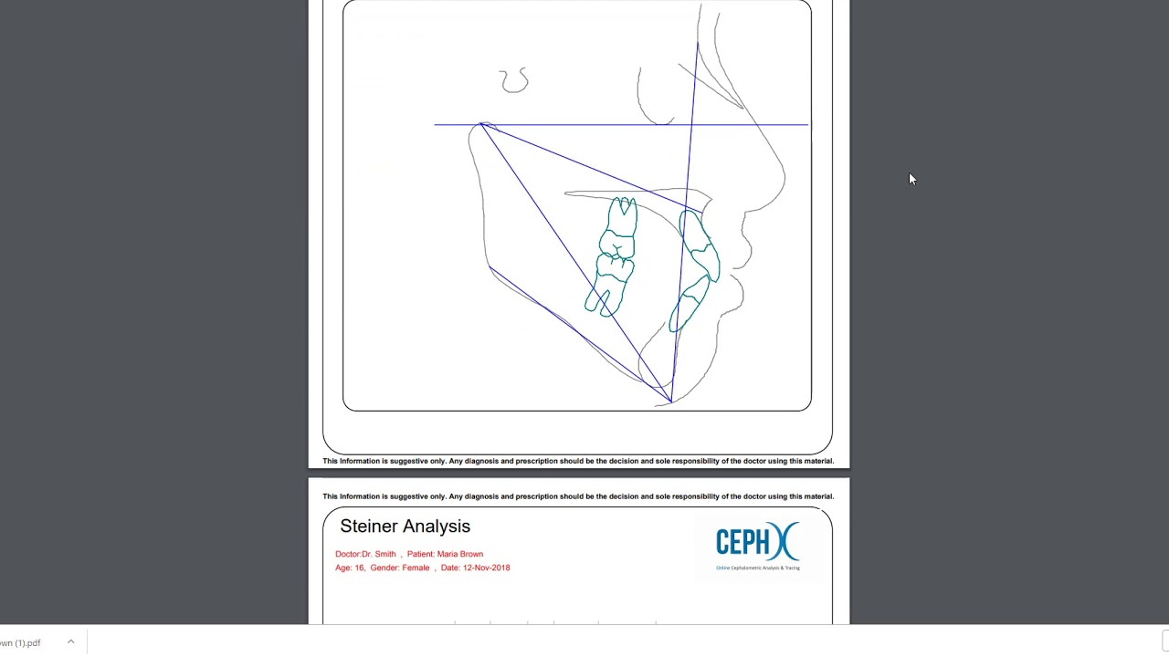 CephX | Downloading Cephalometric Analysis