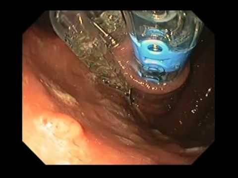Transoral Incisioless Fundoplication – TIF Surgical Procedure
