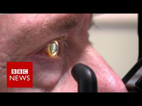 Robot operates inside eye - BBC News