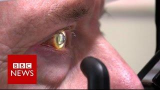 Robot operates inside eye - BBC News