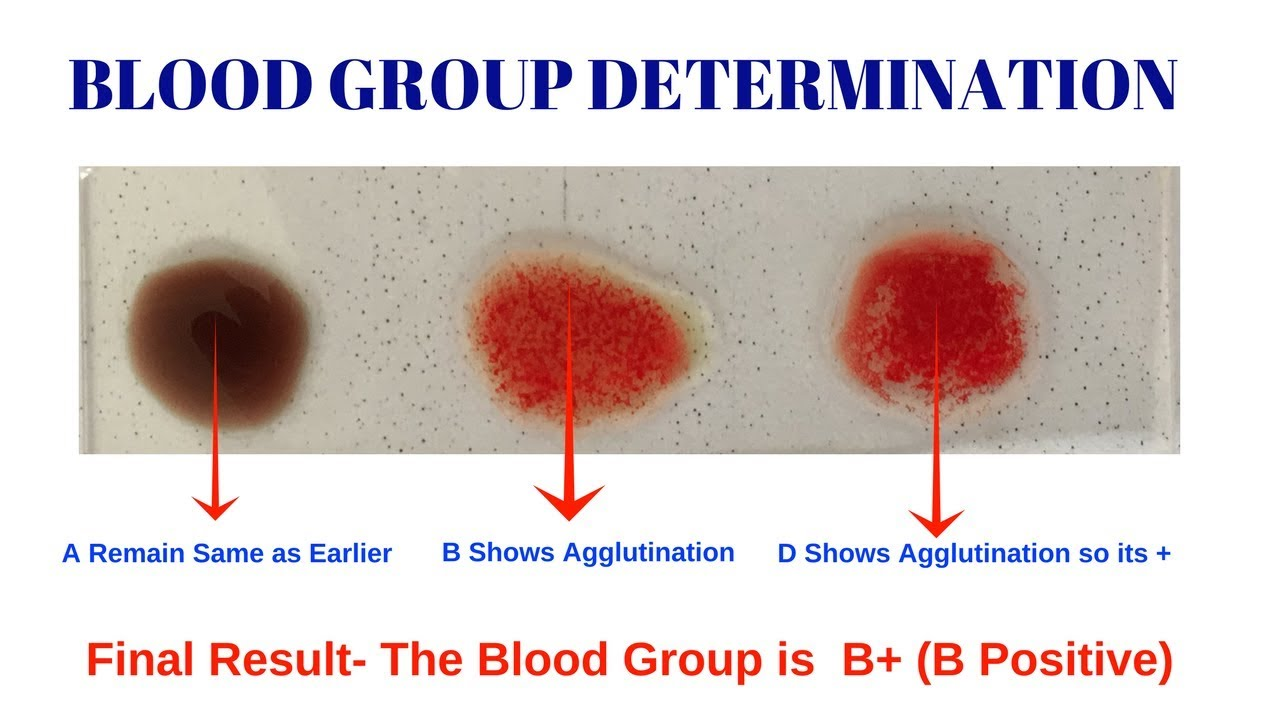 ABO/Rh Simulated Blood Typing—Student Laboratory Kit