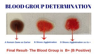 Blood Group Test- Different types of blood group by Solution-Pharmacy