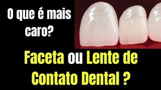 O que é mais caro a faceta ou a lente de contato dental?