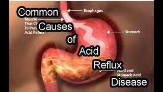 Common Causes of Acid Reflux Disease