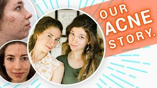 We STOPPED Using Acne Treatment that Worked 🙅  | The Boyer Sisters