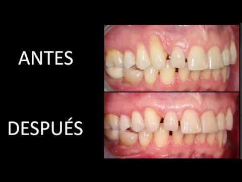 curar periodontitis con homeopatia