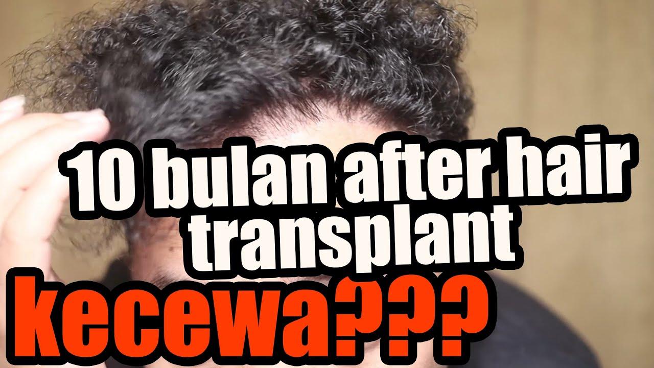 update 11 bulan setelah hair transplant, Mengecewakan!!!!!!!