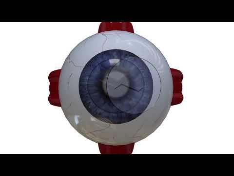 Анимация в 3д, хирургическая операция глаза 3