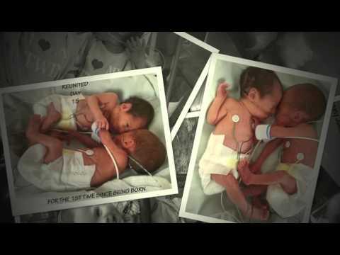 29 week premature twins