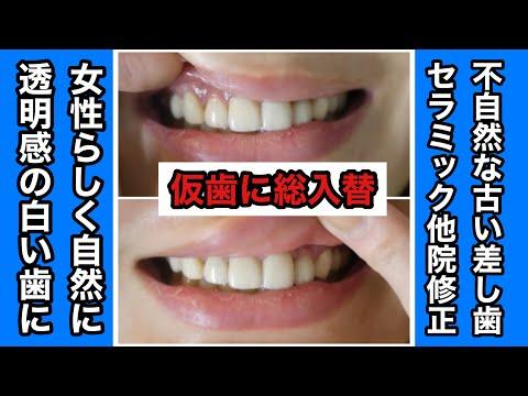 今までの歯医者では納得のいく治療を1度も受けたことがなかった