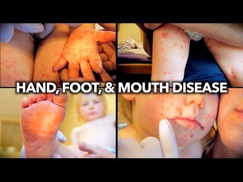 WORST RASH I'VE EVER SEEN! (Hand, Foot, & Mouth Disease) | Dr. Paul