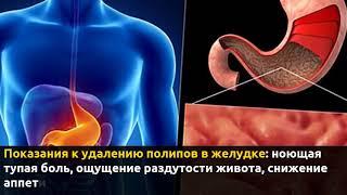 Удаление полипов в желудке