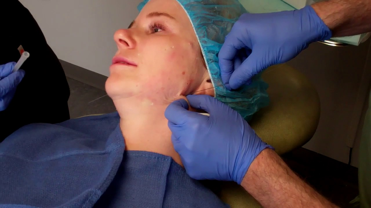 Instant Non Surgical Facelift With Threads | Denver Facelift