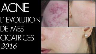 ACNE : évolution de mes cicatrices 2016