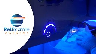ReLEx smile Academy: Lenticule creation Step 5 to 7