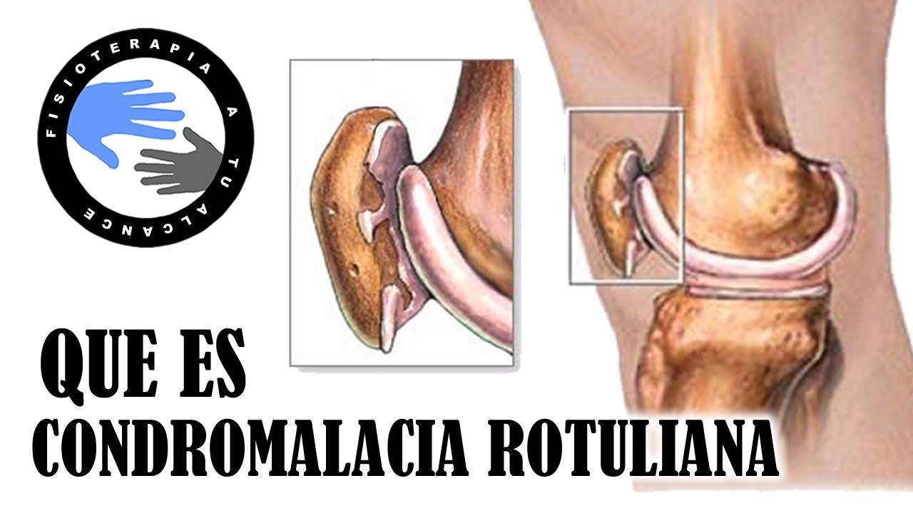 Cartilago parelar articular articular adelgazamiento del