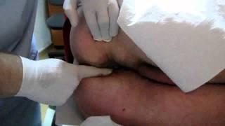 Repeat youtube video Anuscopia