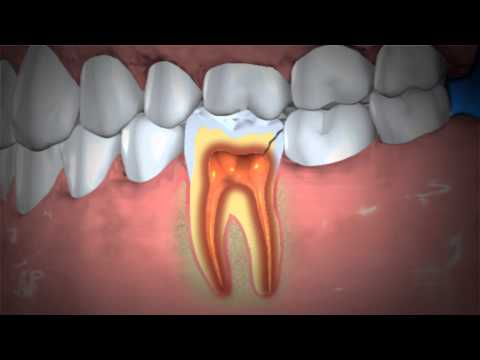 Treatment Of Abscessed Teeth