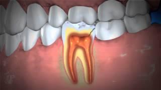 Treatment of Abscessed Teeth