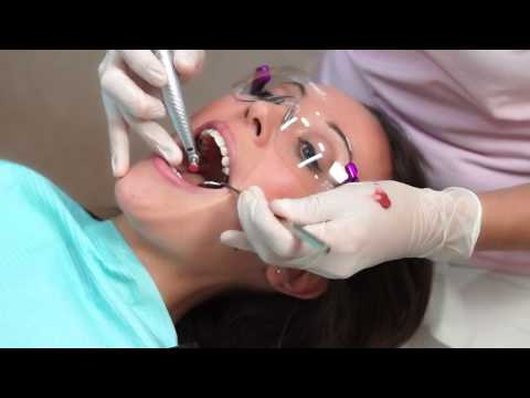 Hygienist Visit Full Mouth Dental Cleaning