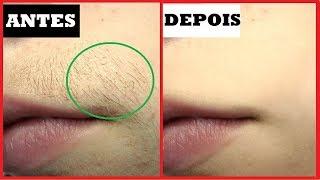 Pare de se depilar – Use ENO para remover pelos para sempre