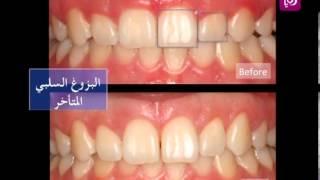 د. مراد شقمان يتحدث عن جراحة اللثة التجميلية