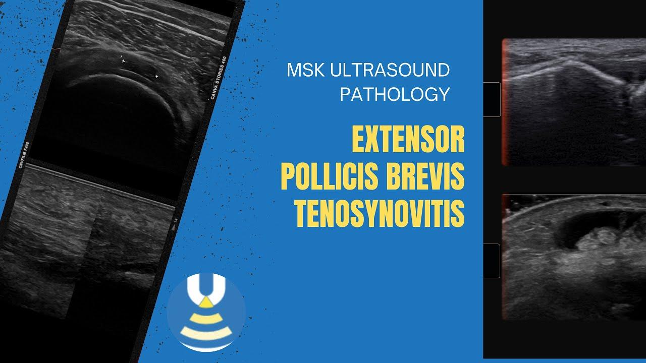 Wrist ultrasound - The Ultrasound Site